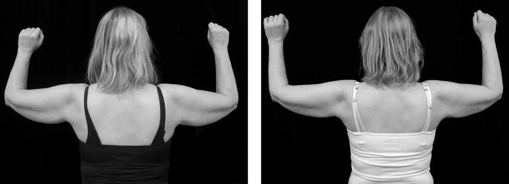 Kvinna som genomgått fettfrysning med CoolSculpting på Nordiska Kliniken