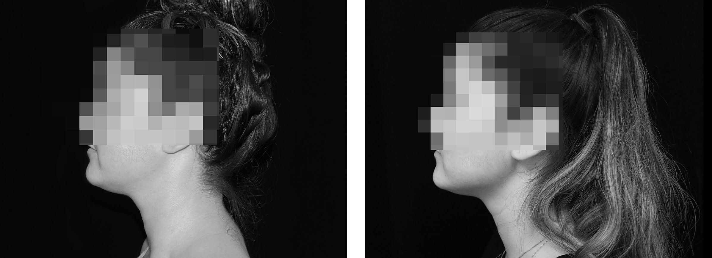 Kvinna som genomgått en fettfrysning med CoolSculpting av haka på Nordiska Kliniken