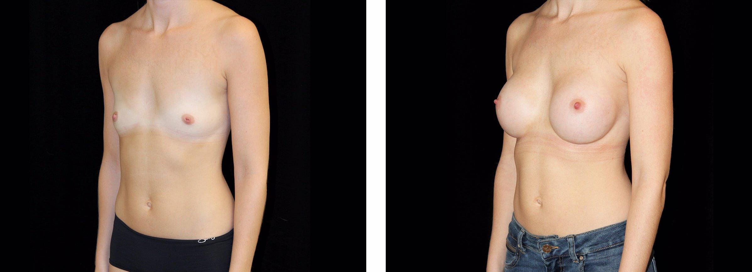 Kvinna som genomgått en bröstförstoring på Nordiska Kliniken