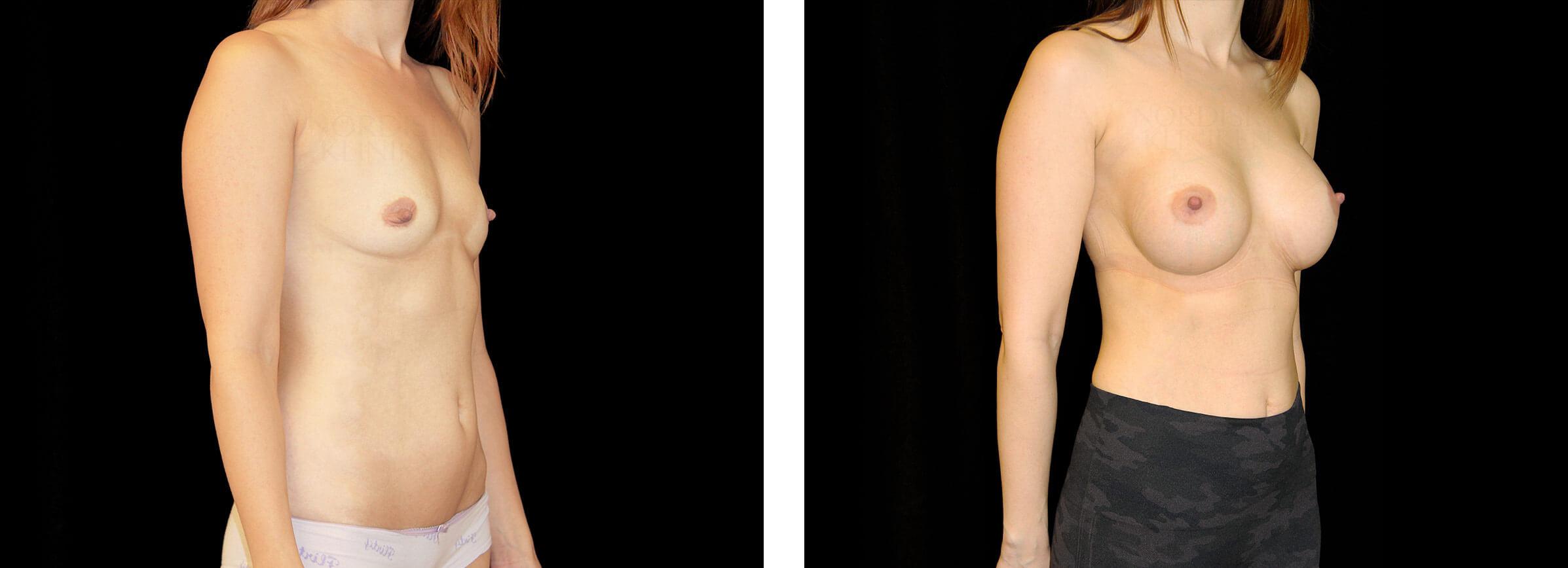 Kvinna som genomgått bröstförstoring på Nordiska Kliniken