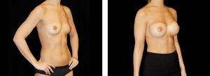 Kvinna som gjort bröstförstoring via armhåla på Nordiska Kliniken