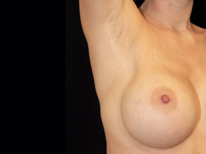 Ärr i armhåla på kvinna som genomgått en bröstförstoring på Nordiska Kliniken