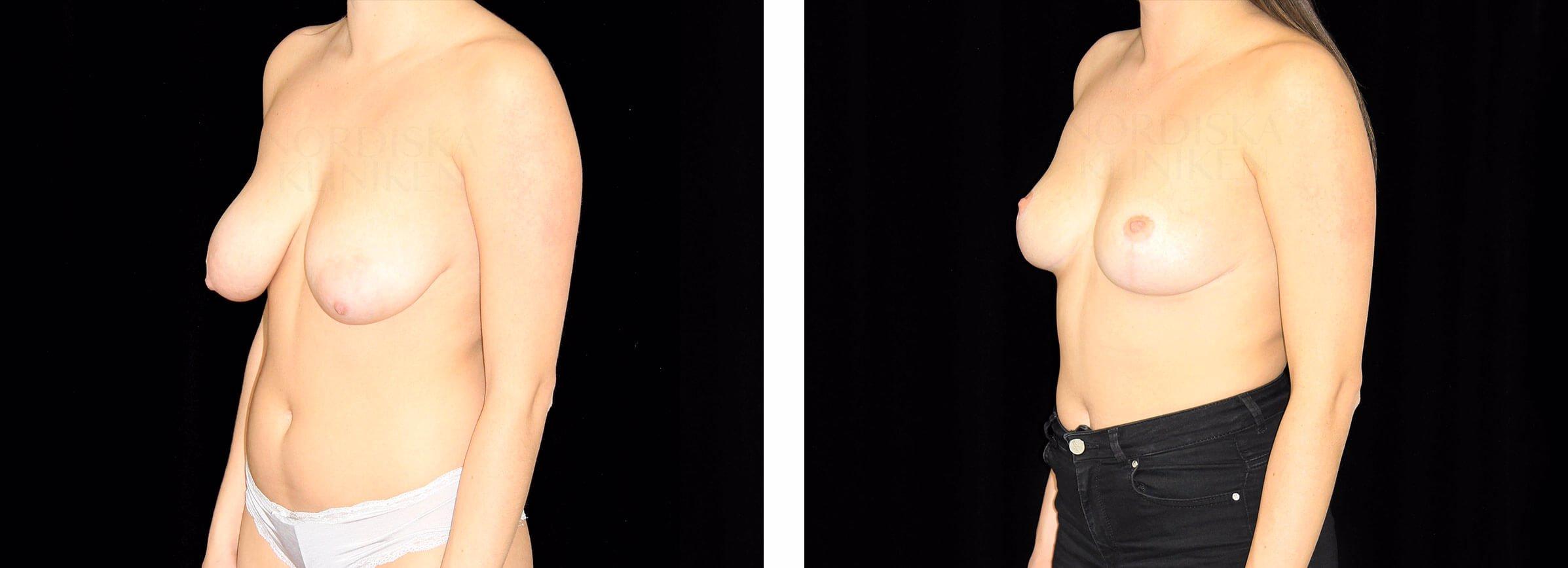 Nordiska kliniken bröstlyft bröstförminskning