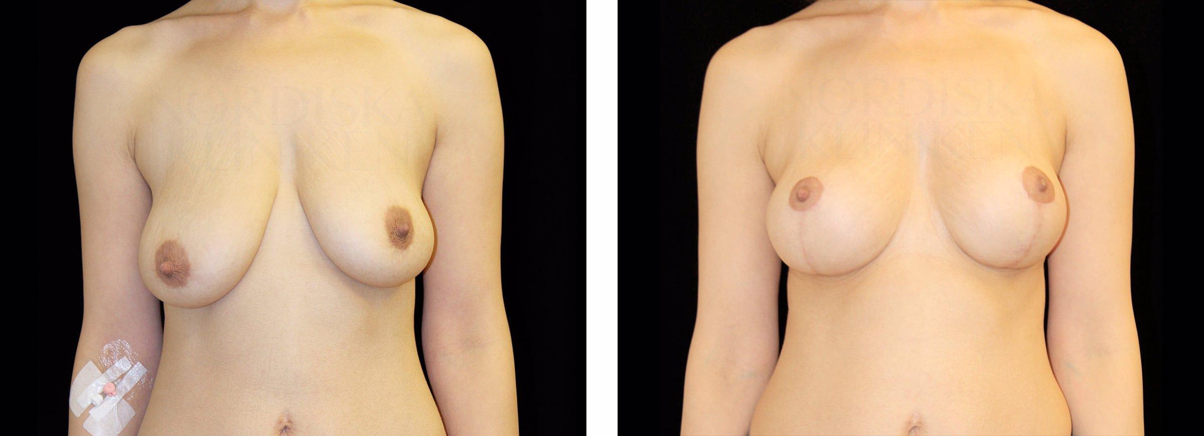 2018 sexarbetare små bröst nära Stockholm