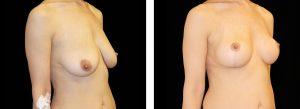Kvinna som genomgått ett bröstlyft på Nordiska Kliniken
