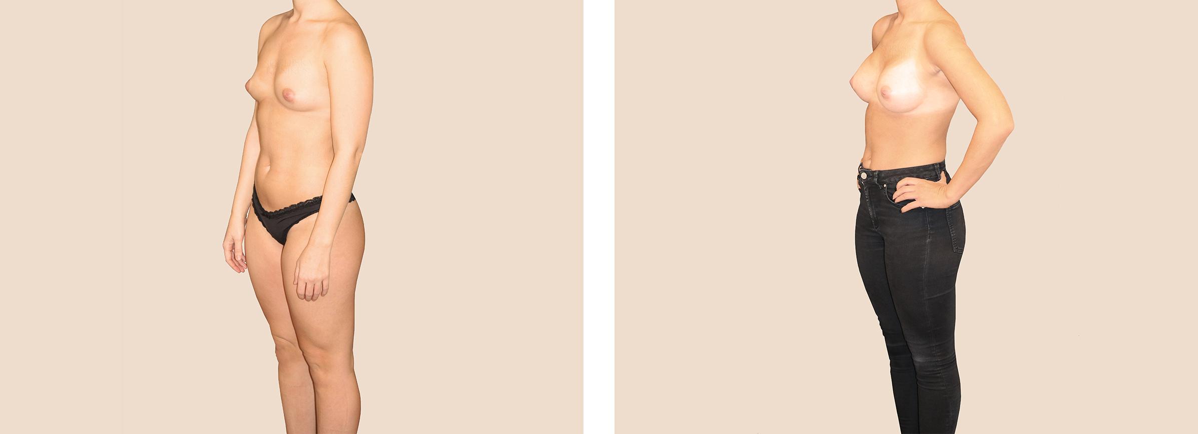 bröstimplantat före och efter