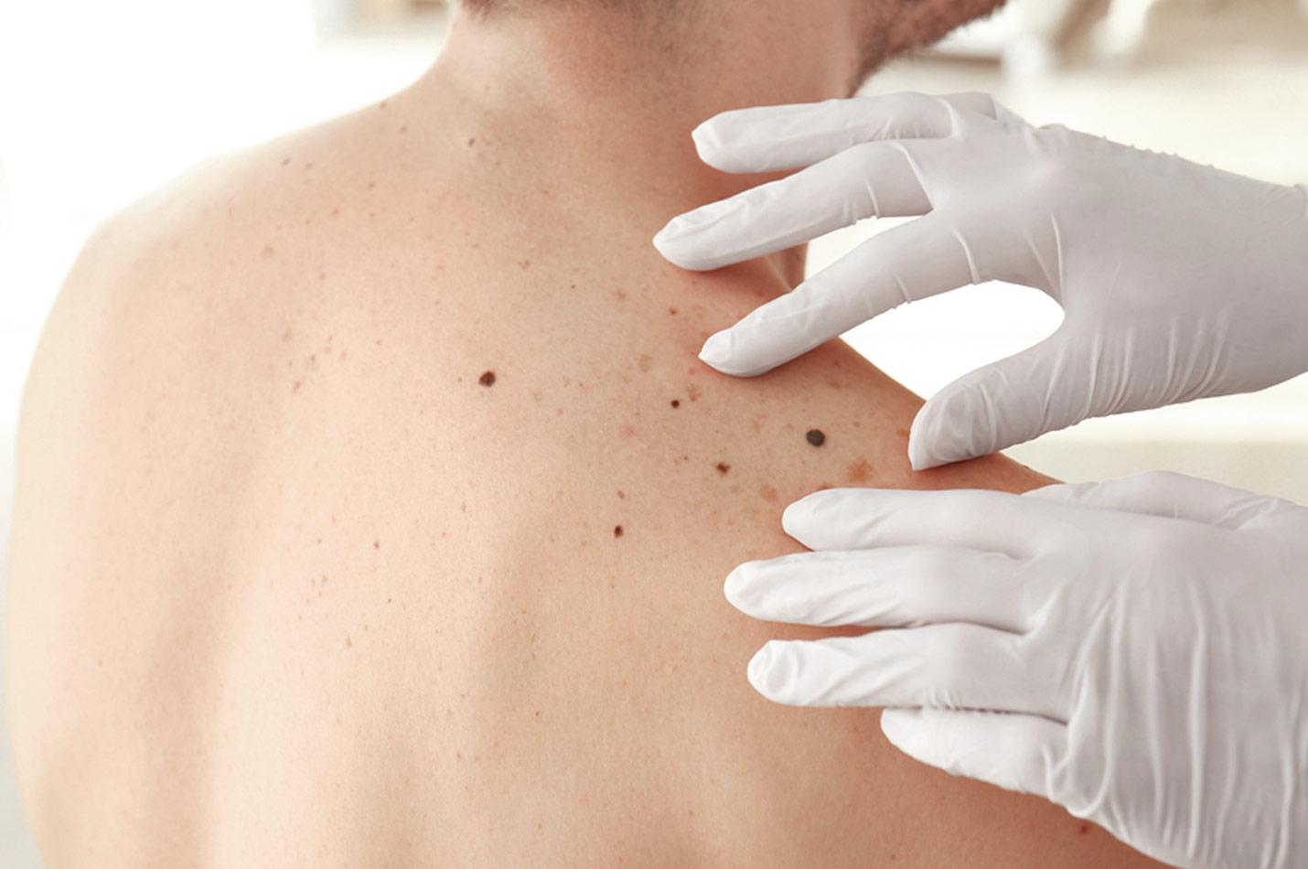 hudmottagning stockholm utan remiss