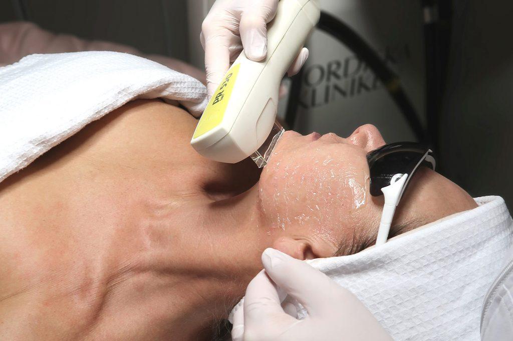 Kvinna utför IPL-behandling